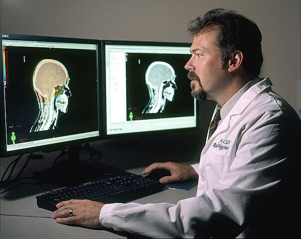 Doctor reviewing Brain Images